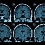 آسیب به مسیرهای عصبی در پی سکته مغزی می تواند باعث به وجود آمدن اختلالات حواس شود.